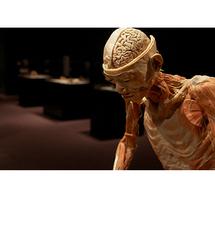 L'exposition ''Our body, à corps ouverts'' attaquée en justice