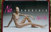 Mort d'Isabelle Caro, jeune mannequin anorexique