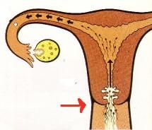La glaire est sécrétée par des cryptes, sortes de replis, à l'intérieur du col de l'utérus et s'écoule dans le vagin sous l'action des oestrogènes