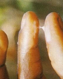 glaire cervicale collante et infertile